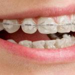 Les bagues dentaires