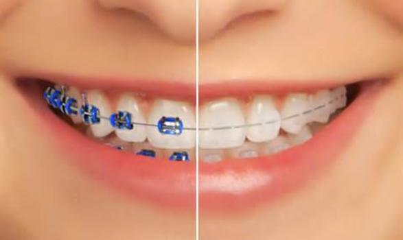Bague dentaire esthetique
