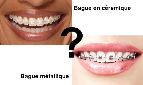 Bague dentaire