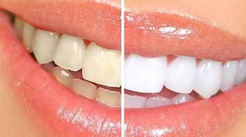Le vinaigre blanc : efficace pour détartrer les dents
