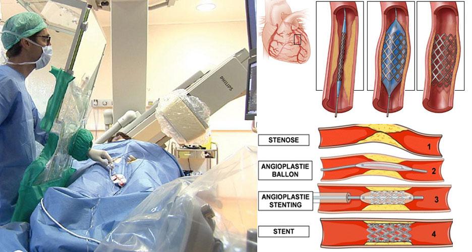 Angioplastie : le traitement des pathologies artérielles à l'aide d'un stent