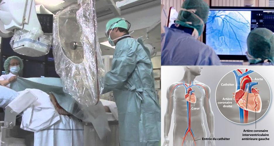 Coronarographie : un examen de visualisation des artères du cœur
