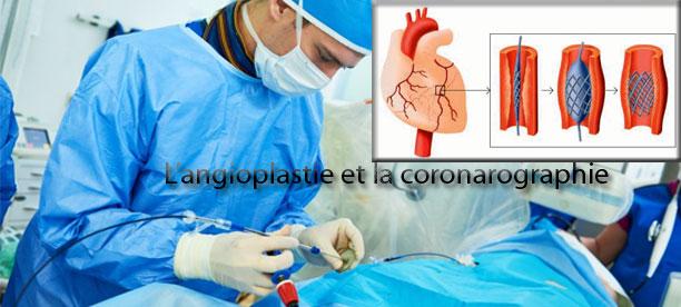 L'angioplastie et la coronarographie, indispensables pour prévenir les risques cardiaques